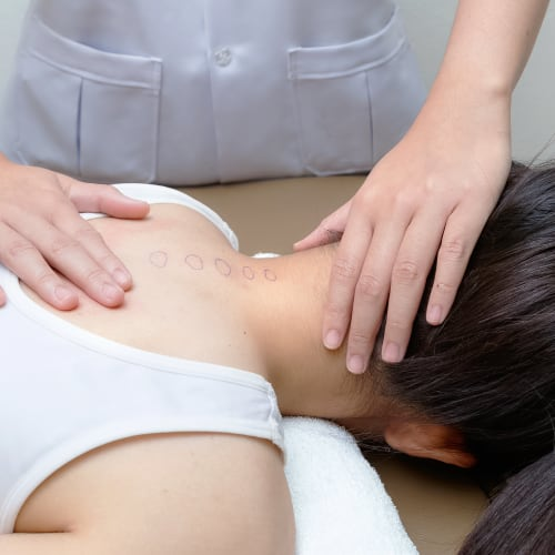 practitioner preparing for acupuncture on a woman's neck