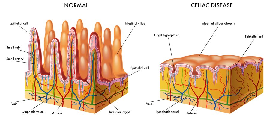 Cellular illustration of Celiac Disease depicting intestinal villous atrophy and crypt hyperplasia