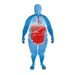 Illustration of inflammation in the gut for an obese woman.